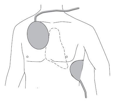 Schiller FRED easyport électrodes